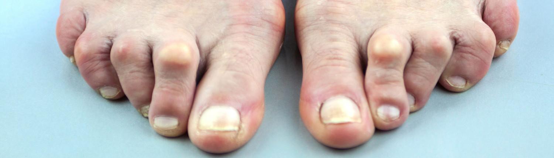 hulpmiddelen artrose handen