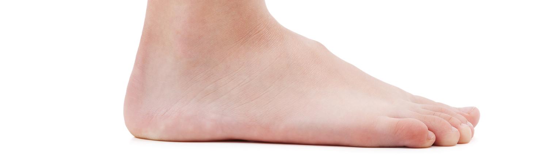 Doorgezakte voet