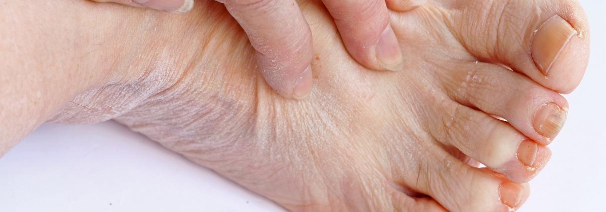 Versleten voeten