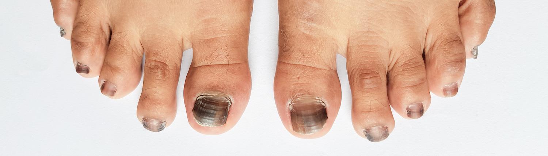 voeten en kanker
