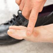 Schoenen voor hallux valgus